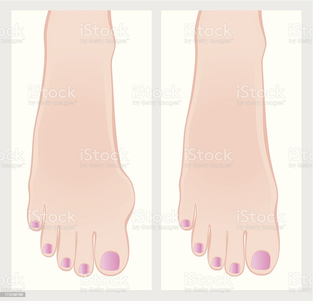 Bunion before and after operation. royalty-free stock vector art