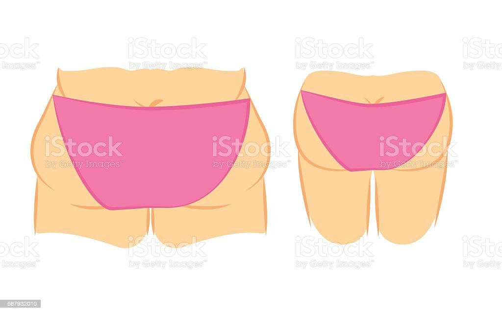 Butt lift correction vector art illustration