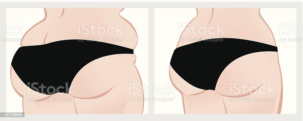Buttocks before and after weight loss. vector art illustration