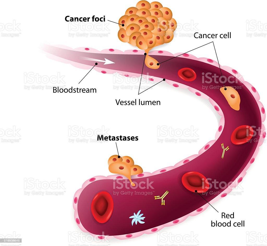 Cancer cells, cancer foci and Metastases vector art illustration