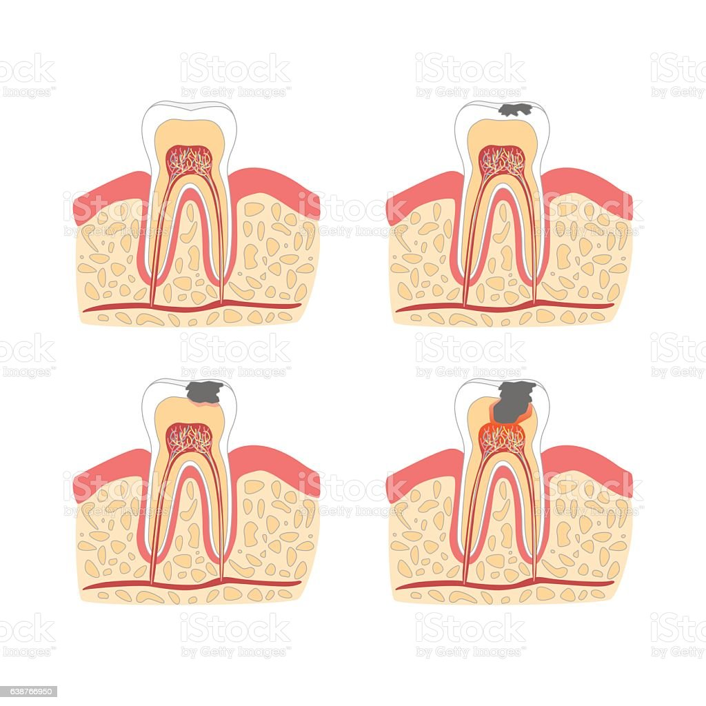 Cartoon Tooth with Stages of Dental Caries Formation Set. Vector vector art illustration