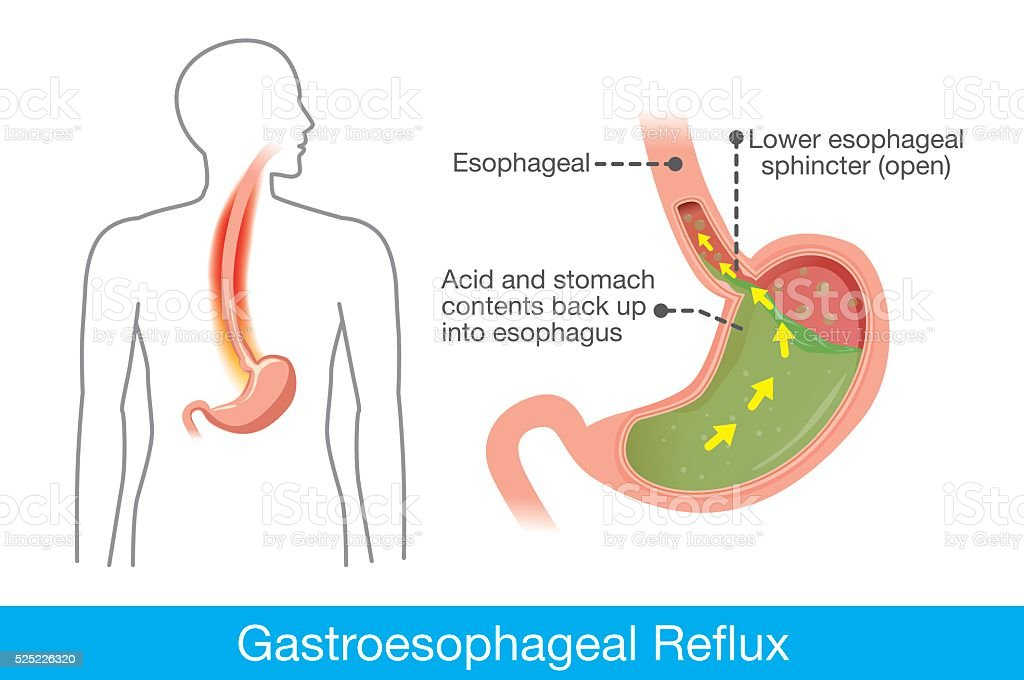Cause of gastroesophageal reflux disease in human stomach vector art illustration