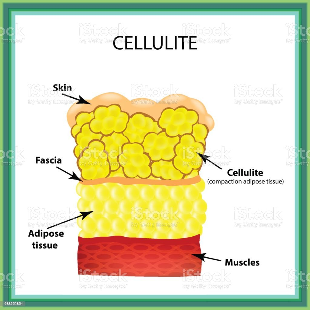 Cellulite. The anatomical structure of the adipose tissue. Infographics. Vector illustration on isolated background vector art illustration