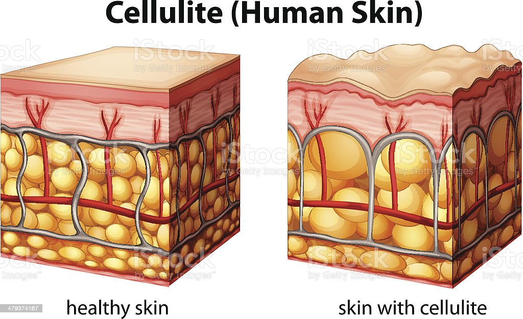 Cellulite vector art illustration