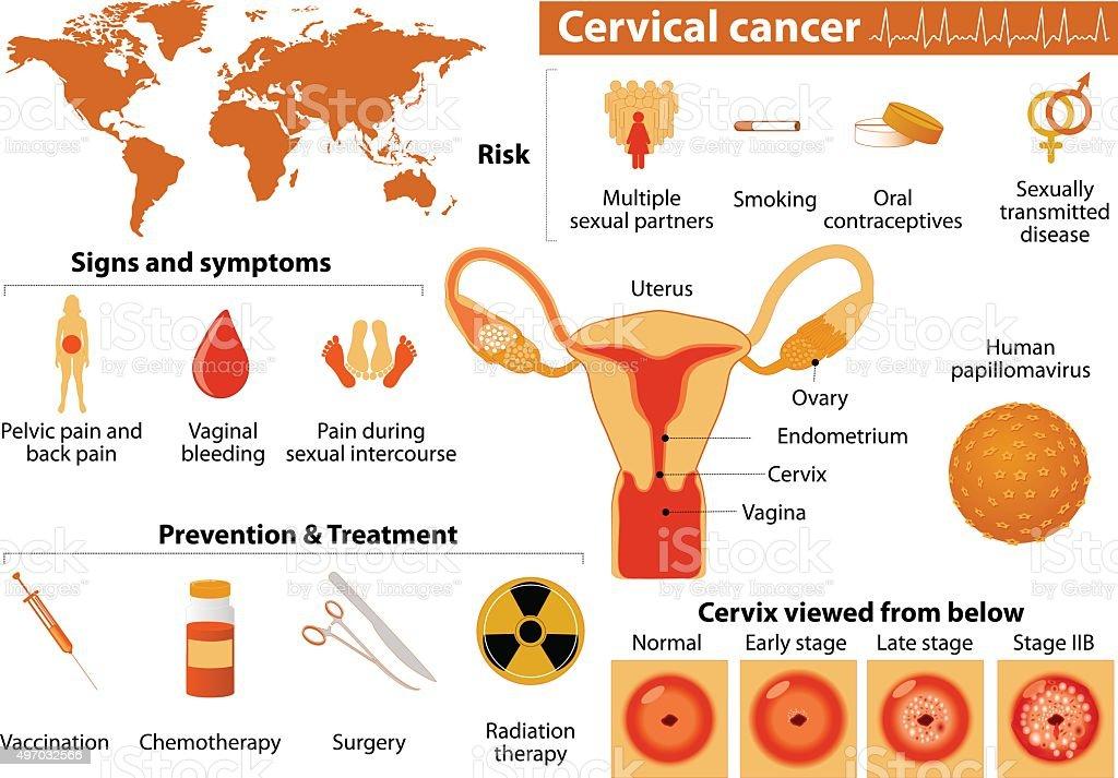 Cervical Cance.  Medical Infographic set vector art illustration