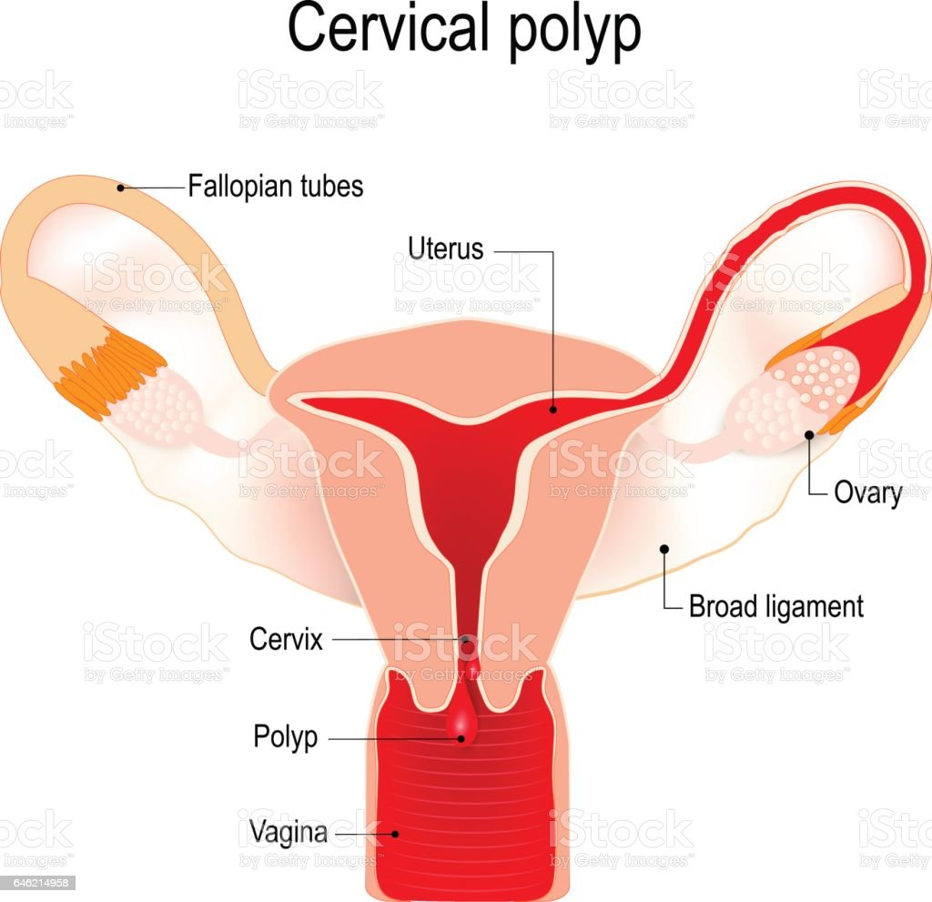 cervical polyp on the uterus stock vector art 646214958 | istock, Skeleton