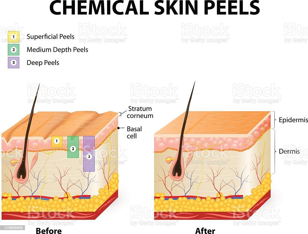 chemical peels vector art illustration