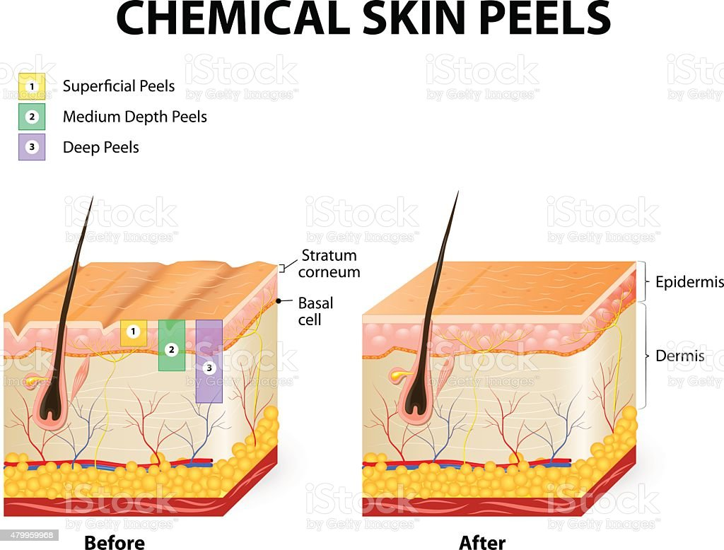 chemical peels vector art illustration