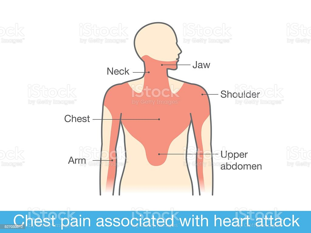 Chest pain associated with heart attack. vector art illustration