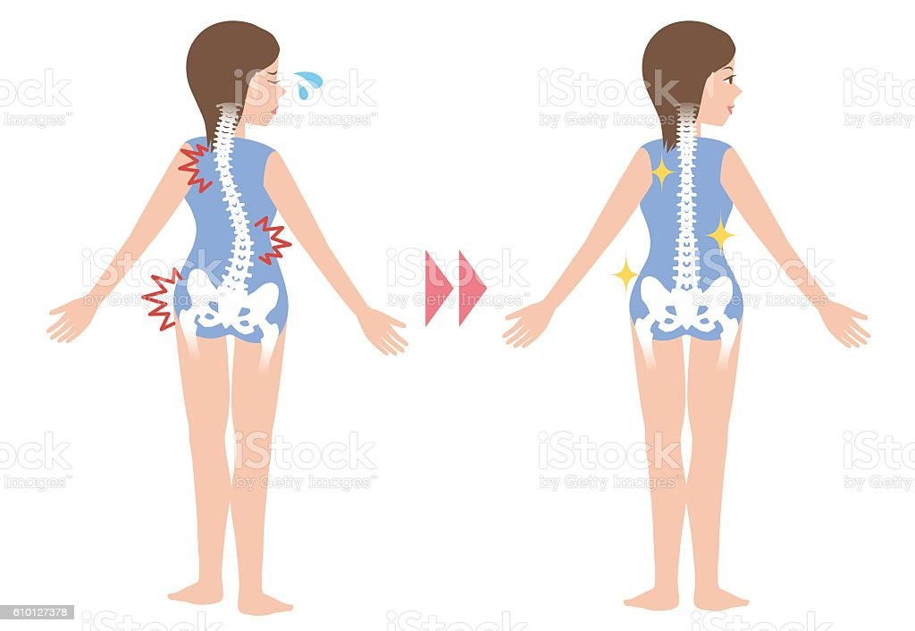chiropractic before after image vector art illustration
