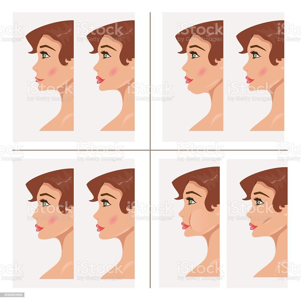 Collection plastic procedures. Vector Illustration vector art illustration