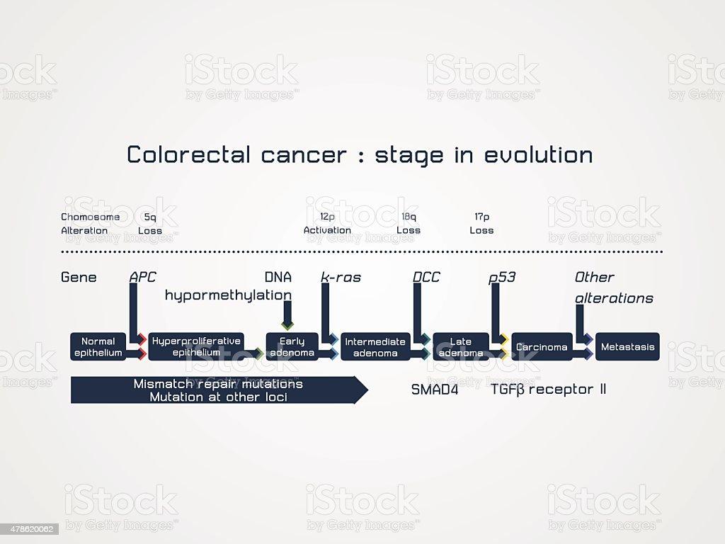 Colorectal cancer - stage in evolution vector art illustration