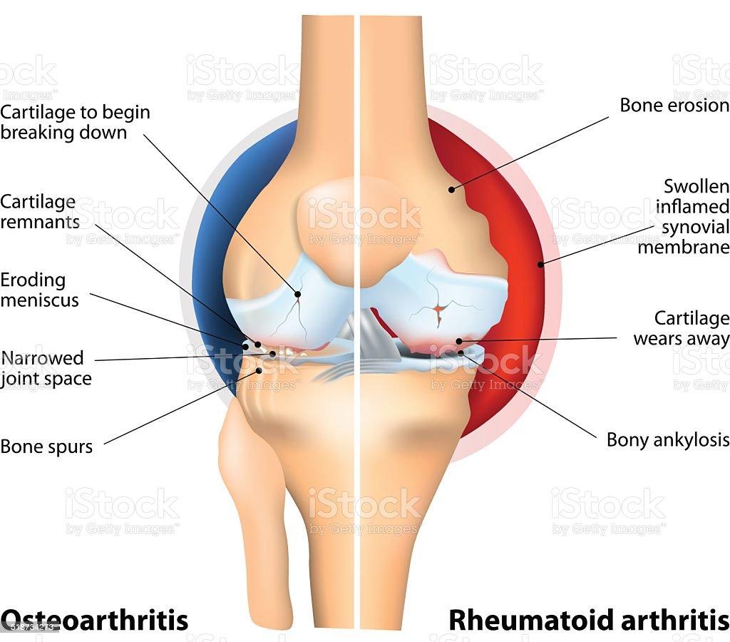 Comparison of Osteoarthritis and Rheumatoid Arthritis vector art illustration