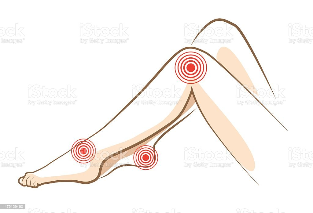 Concept of woman pain in legs, vector vector art illustration