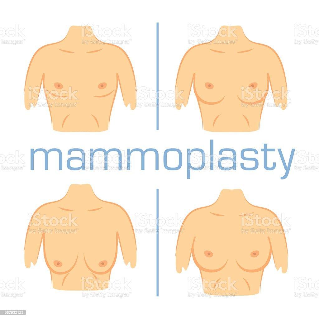 Correction form size breast white back vector art illustration