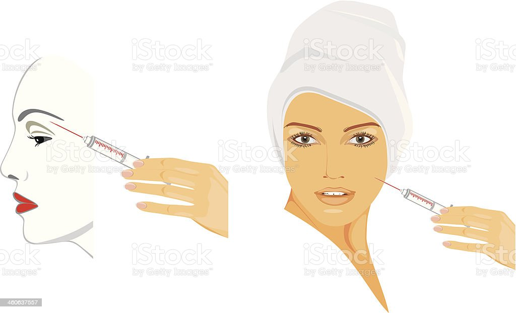 Cosmetic injection of hyaluronic acid royalty-free stock vector art