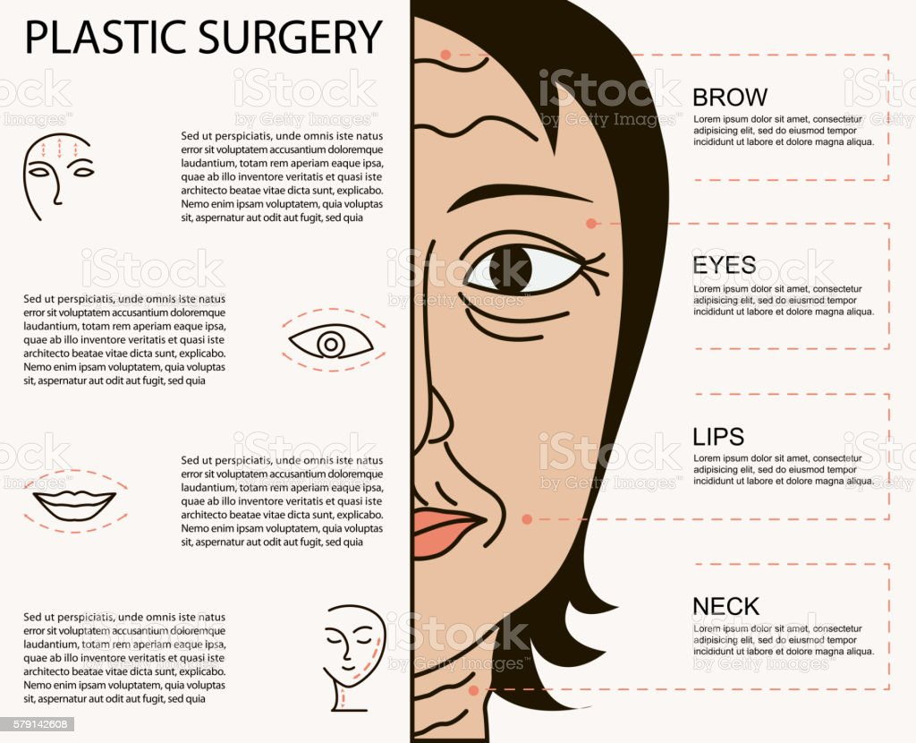 Cosmetic plastic facial surgery poster vector art illustration