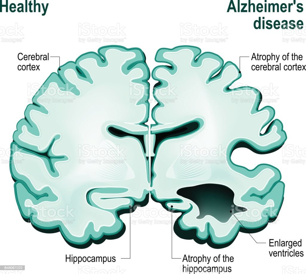 Cross section of the human brain. Healthy brain compared to Alzheimer's disease vector art illustration