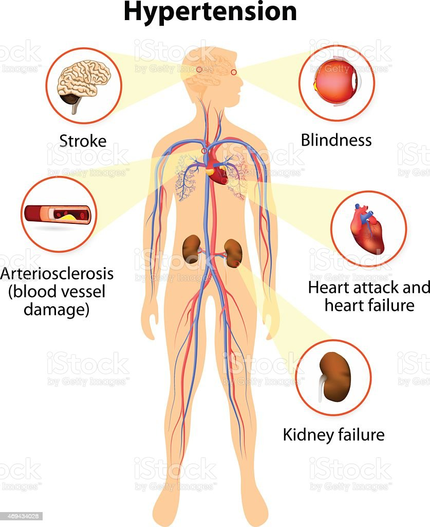 damage from high blood pressure vector art illustration