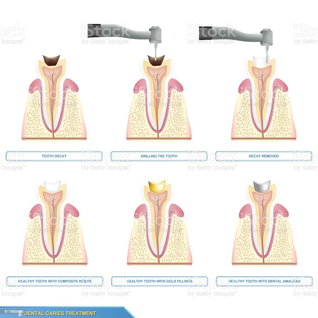 dental caries treatment and the different types of tooth vector art illustration