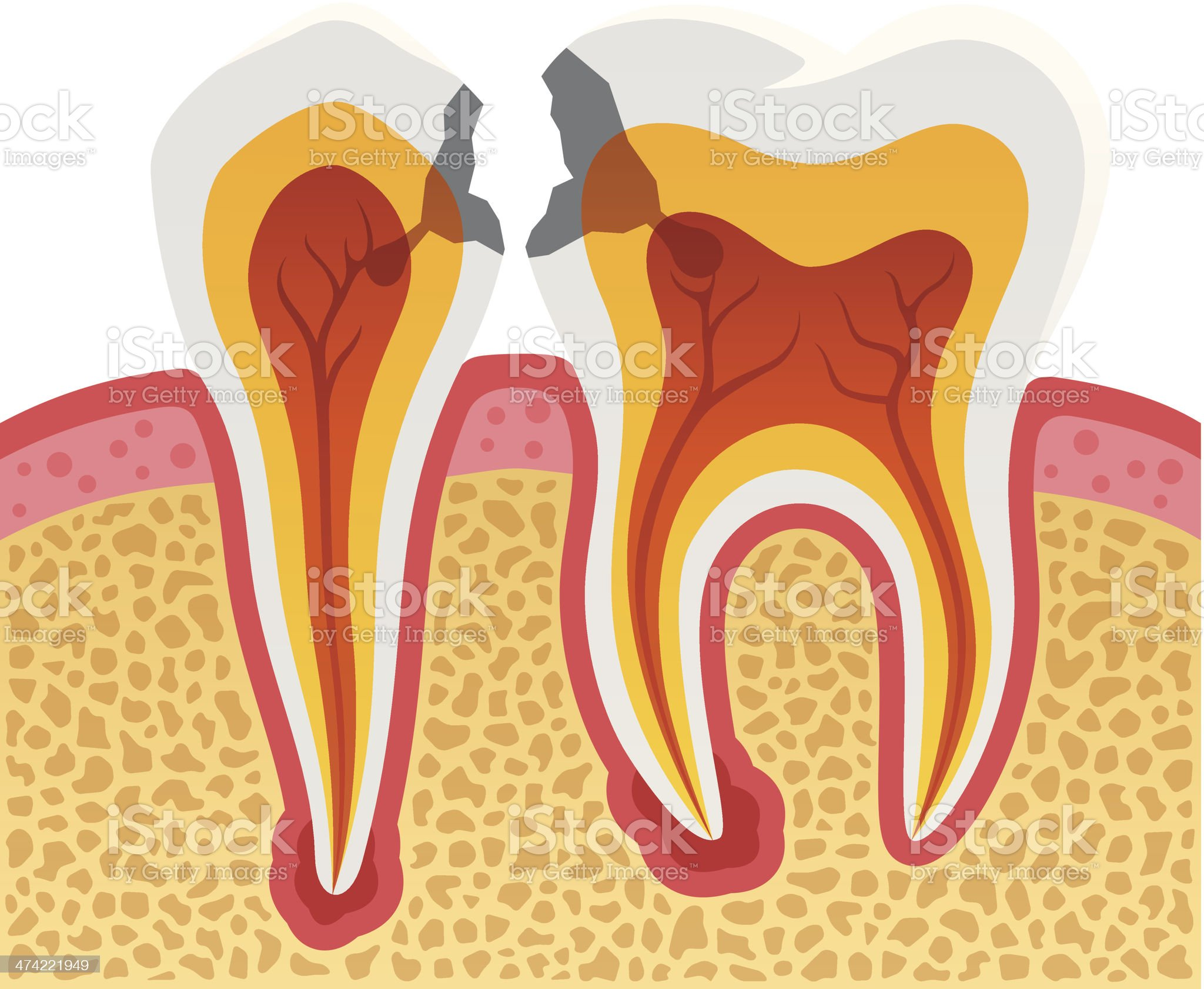 Dental Cavities royalty-free stock vector art
