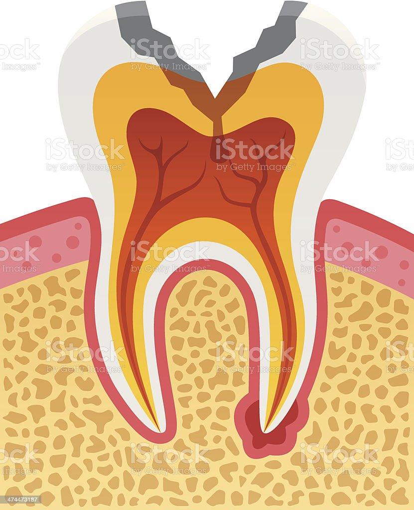 Dental Cavity royalty-free stock vector art