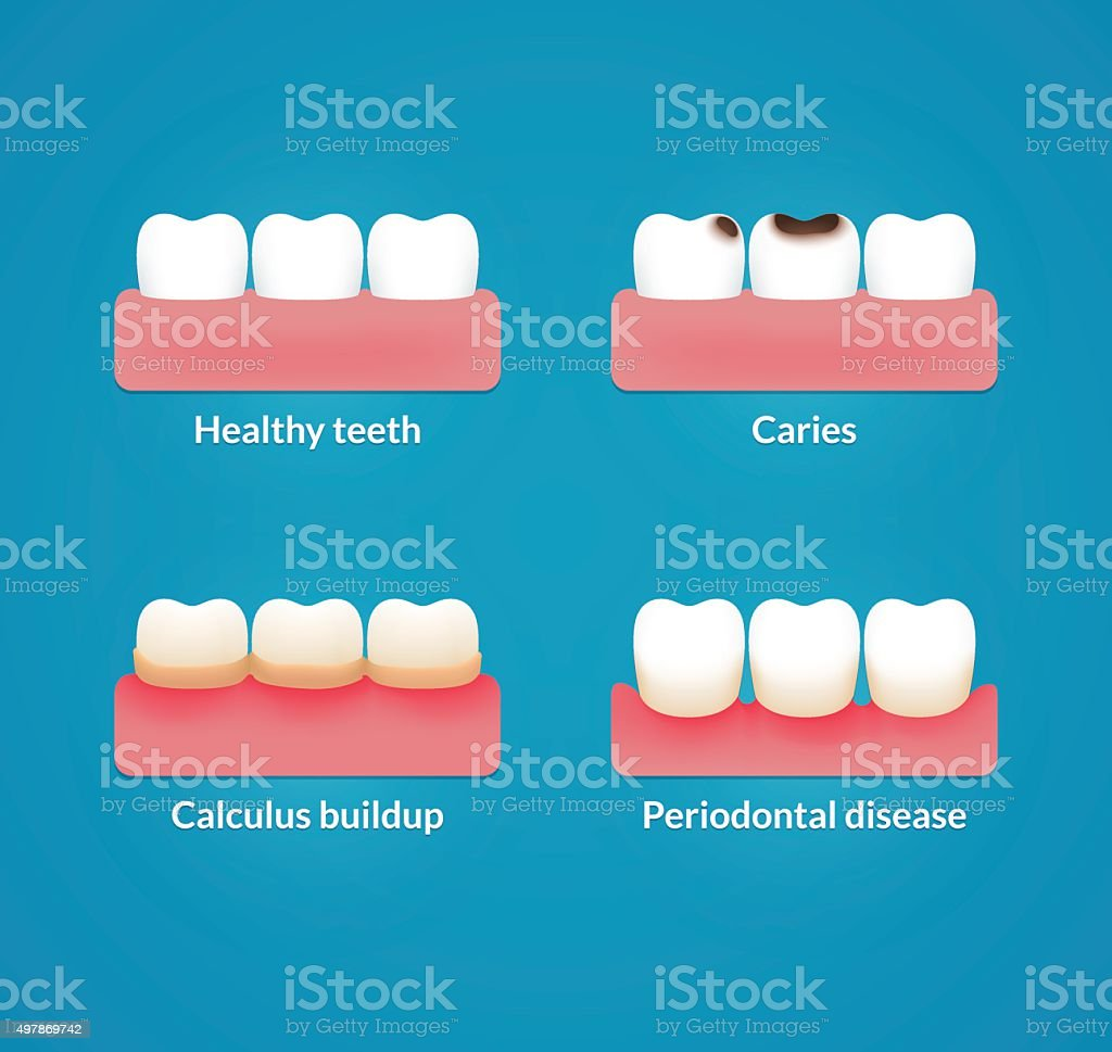Dental health illustration vector art illustration
