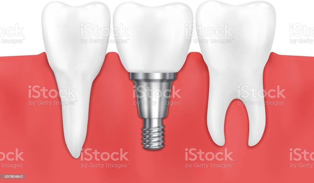 Dental implant and normal tooth vector illustration vector art illustration