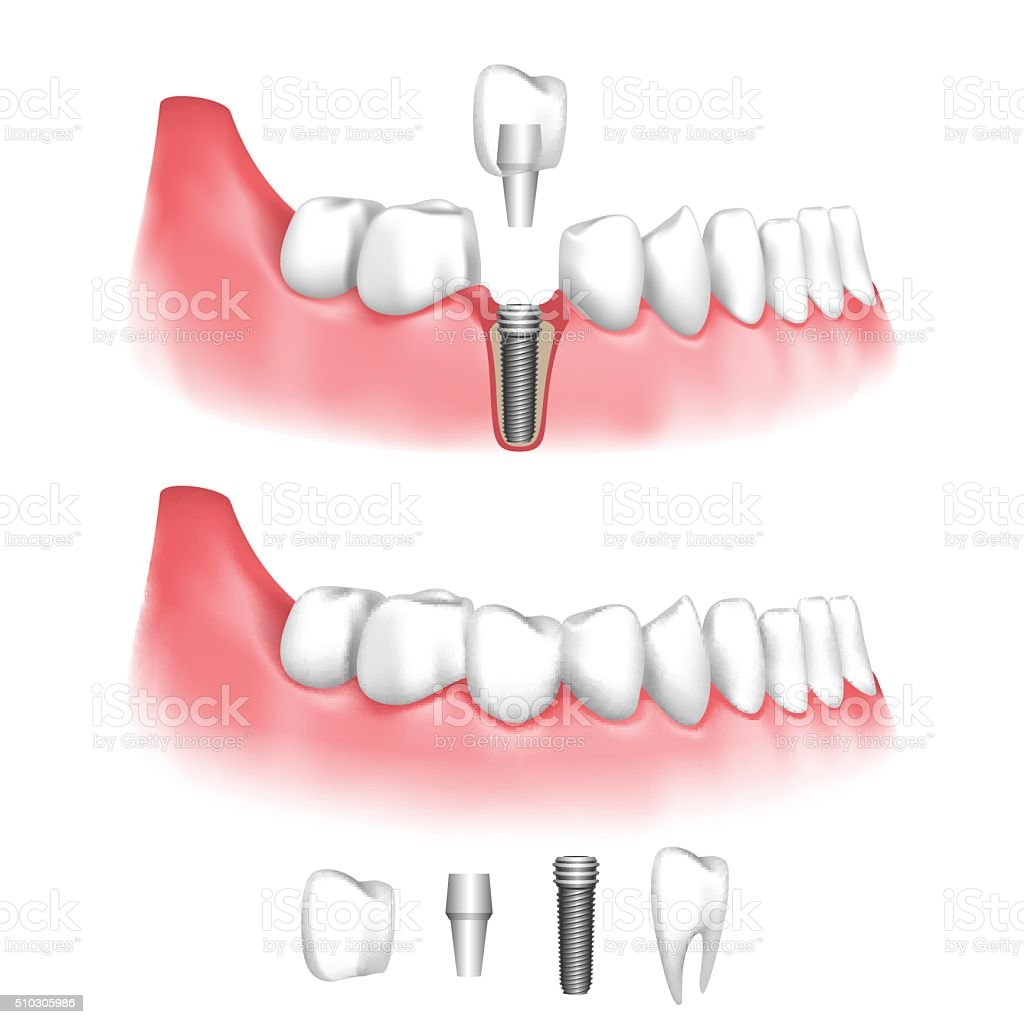 Dental implant vector art illustration