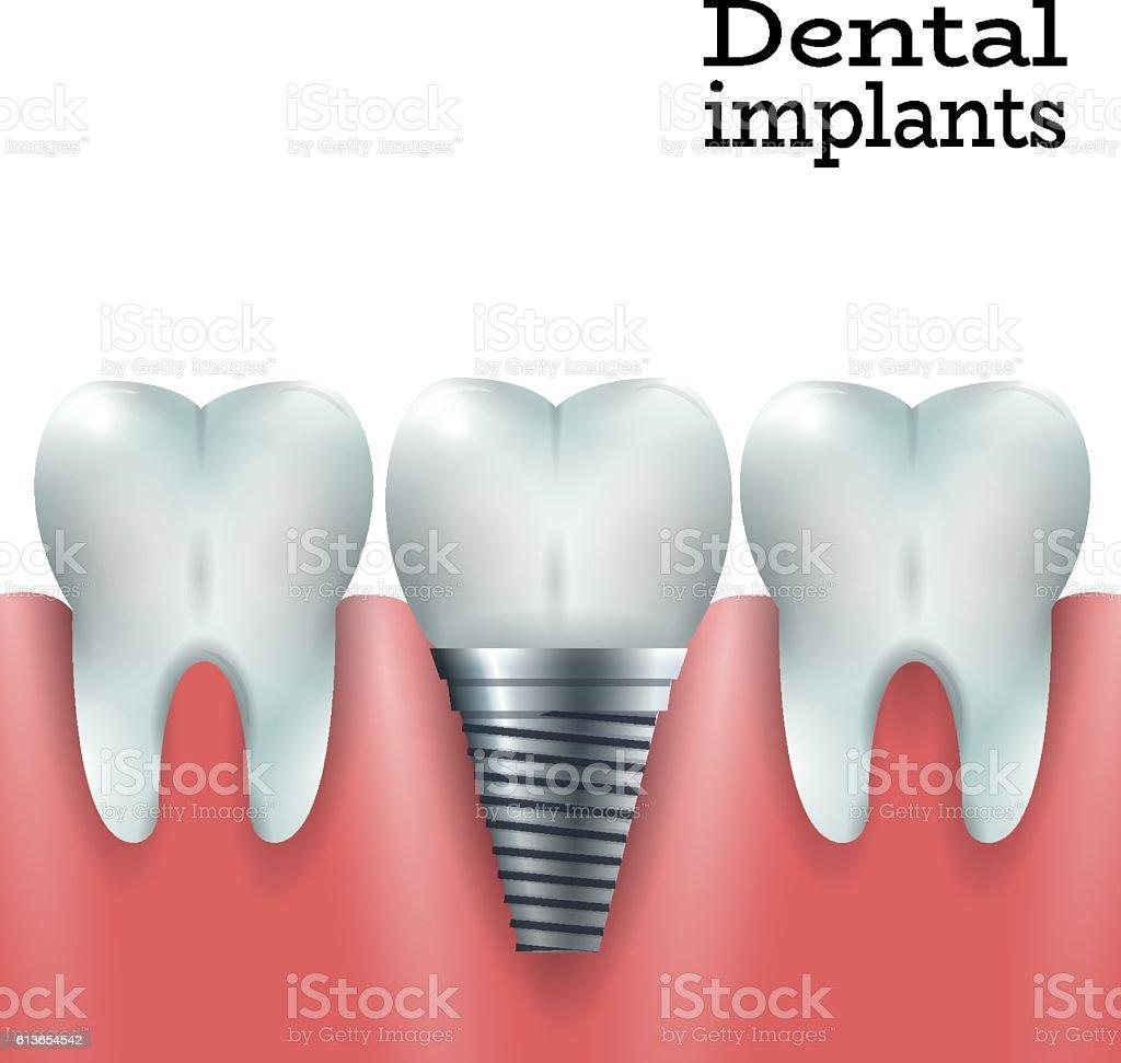 implants dentaires stock vecteur libres de droits libre de droits