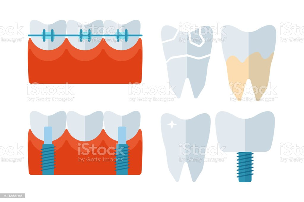 Dentist tooth implants and stomatology equipment vector illustration vector art illustration