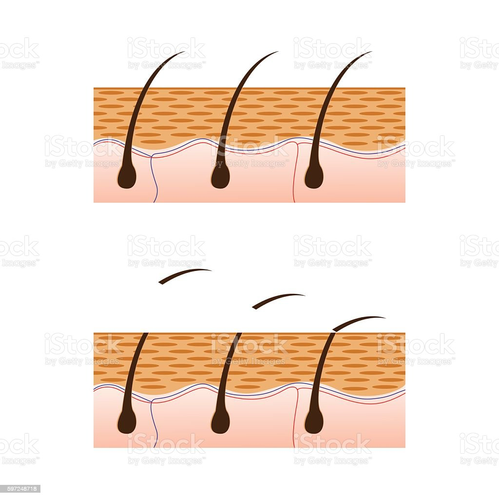 Depilation and skin with hair sectional view. vector art illustration