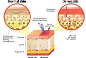 dermatitis or eczema
