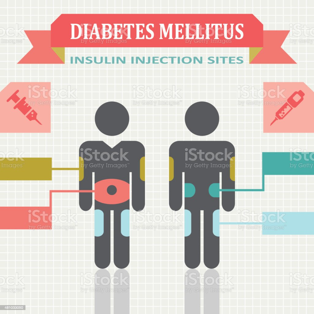 Diabetic Injection Sites: Diabetes Mellitus Infographic With Insulin Injection Sites