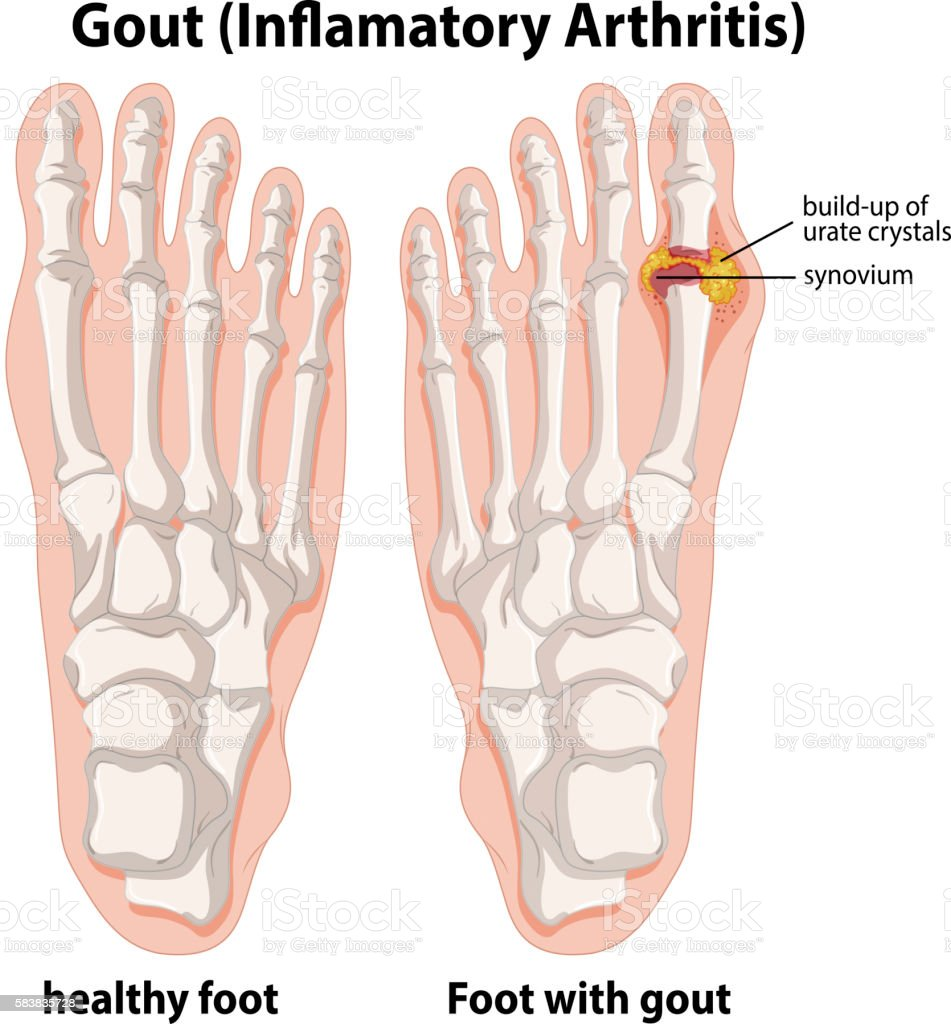 Gouty arthritis foot mri - how to cure uric acid permanently can ...