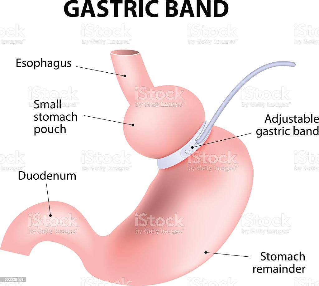 Diagram of an adjustable gastric band vector art illustration