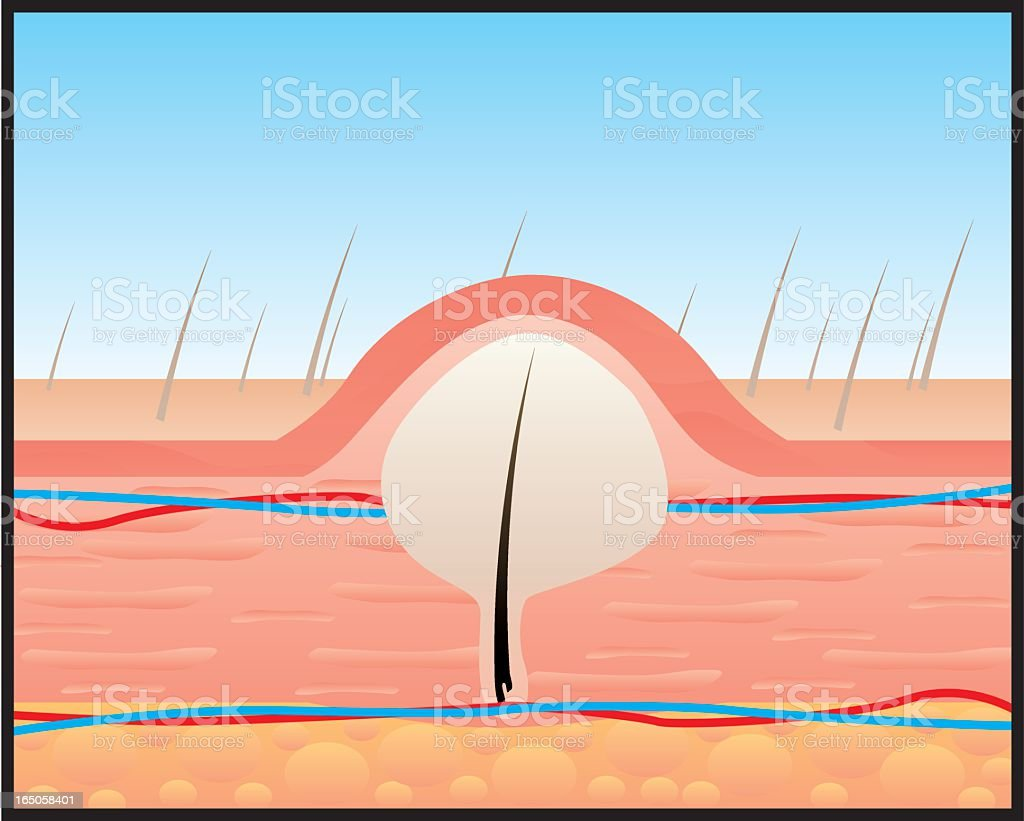 A diagram of hair growing under the skin vector art illustration