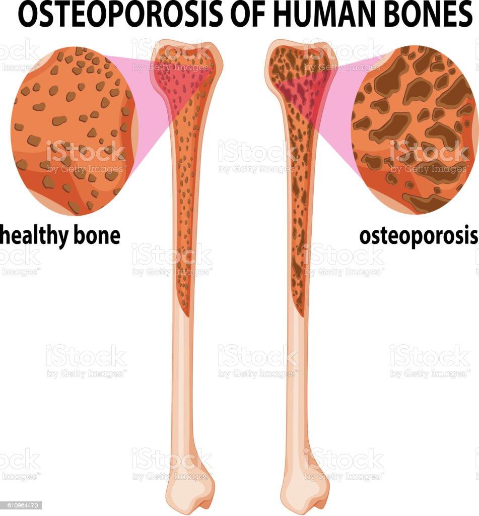 Diagram showing osteoporosis of human bones vector art illustration