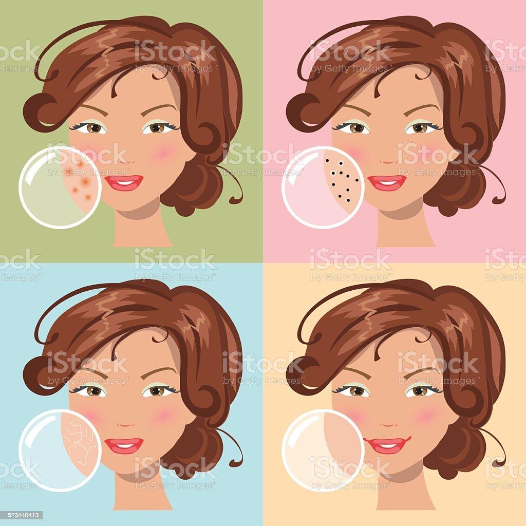 Different skin problems. Vector illustration vector art illustration