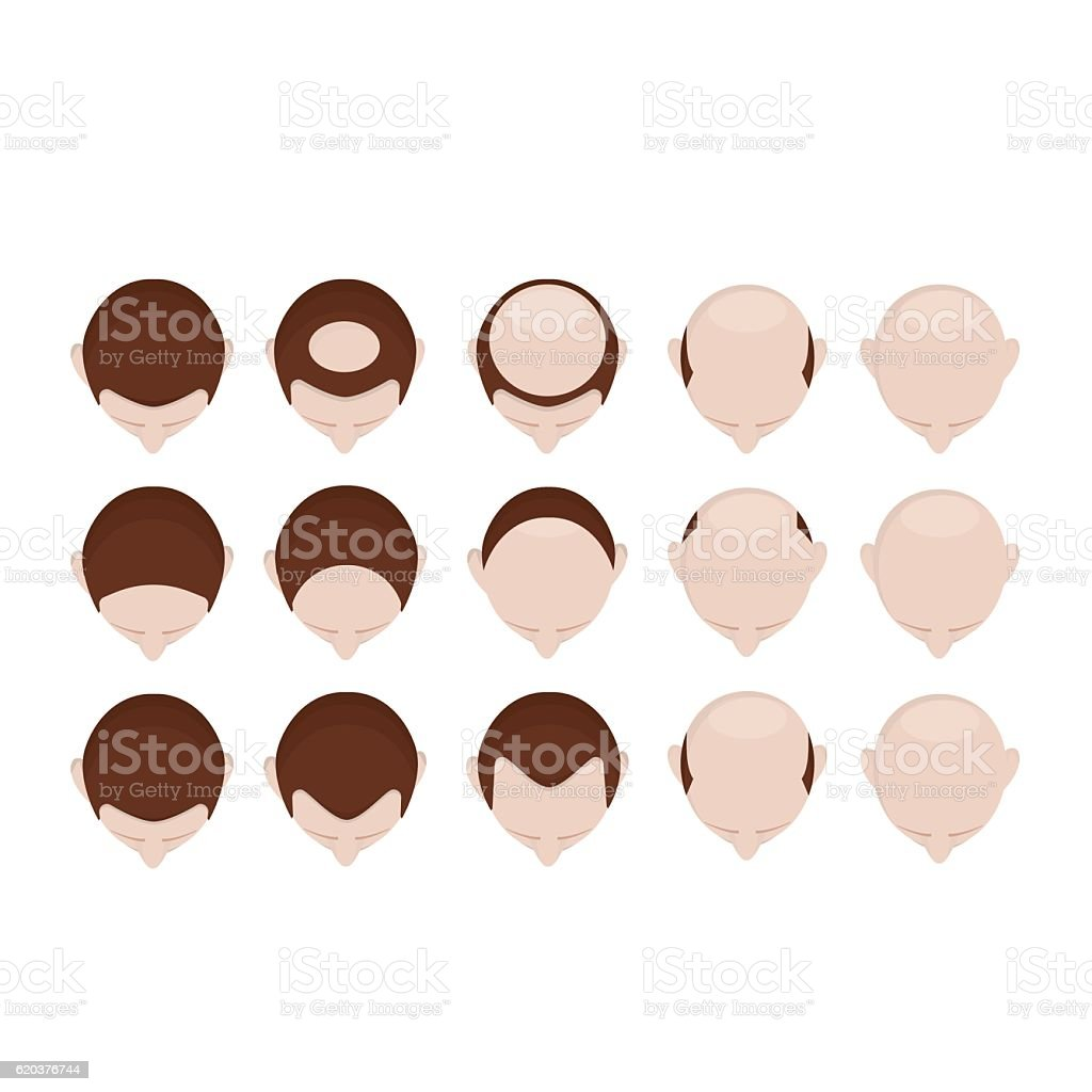 Different stage of baldness vector art illustration