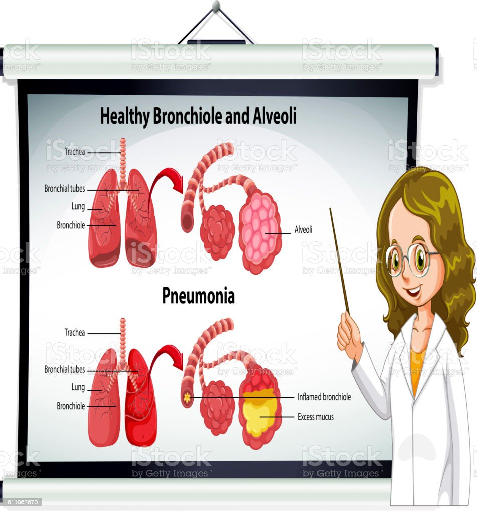 Doctor explaining healthy bronchiole and alveoli vector art illustration