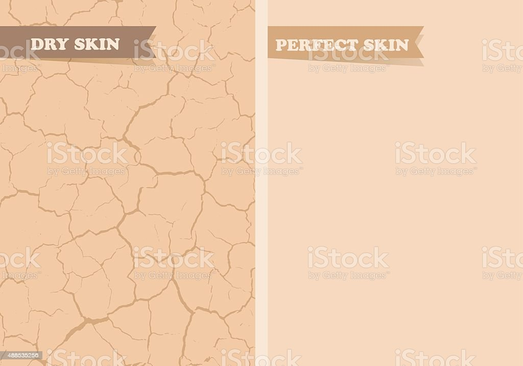 Dry skin, Perfect skin vector art illustration