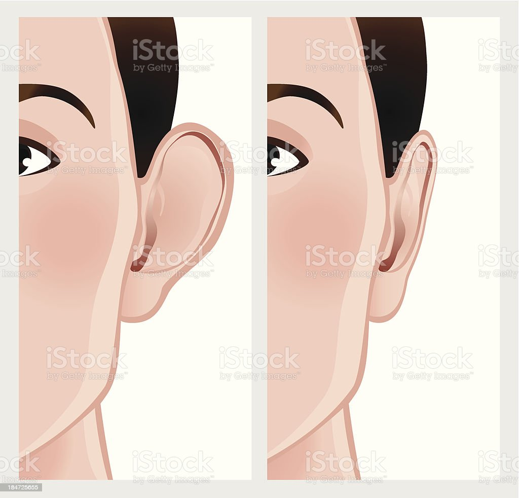 Ear pinning, otoplasty. royalty-free stock vector art