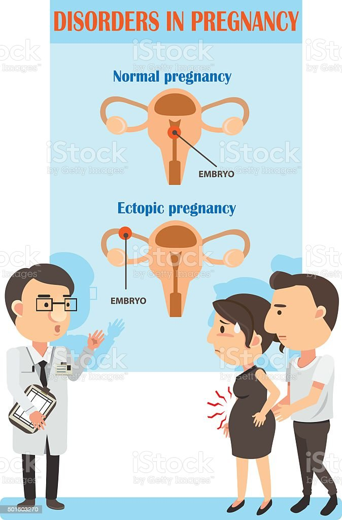 ectopic pregnancy vector art illustration
