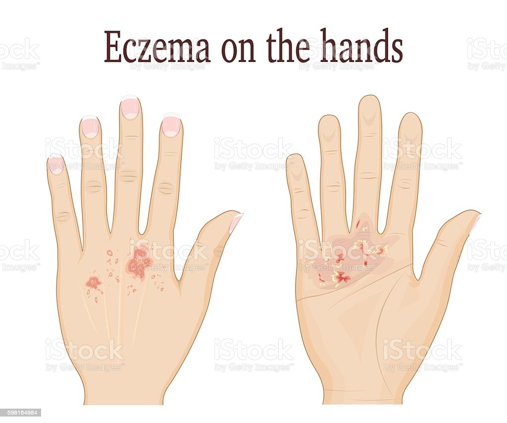 Eczema on the hands vector art illustration