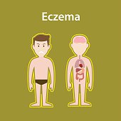 eczema sick illustration with human body full stand and organ