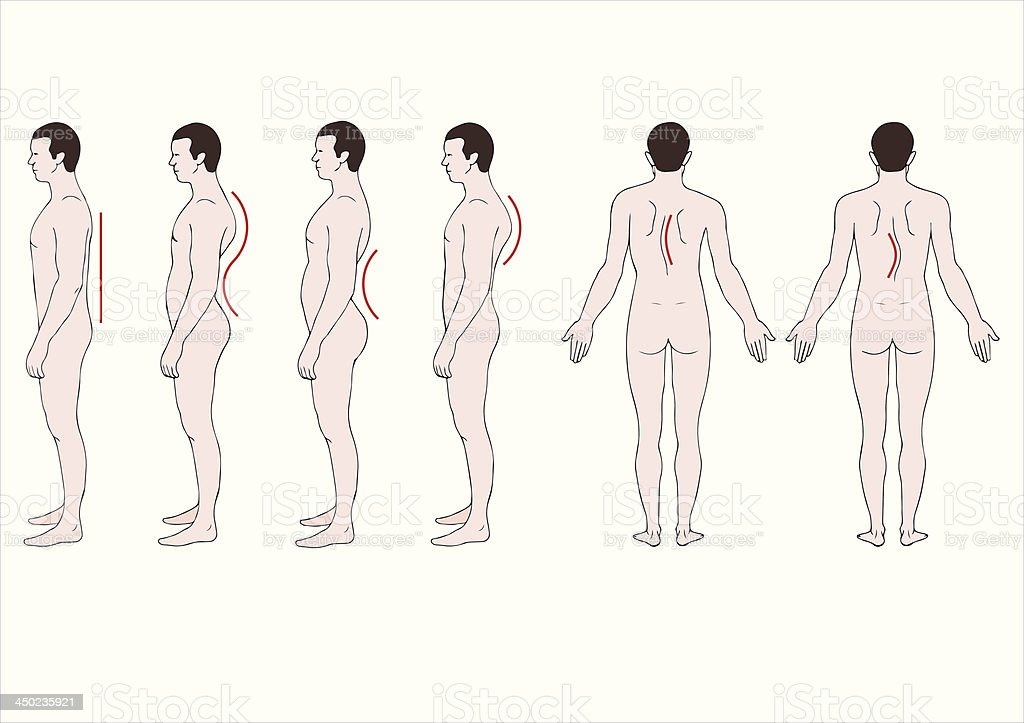 educational illustration deformation of the spine vector art illustration