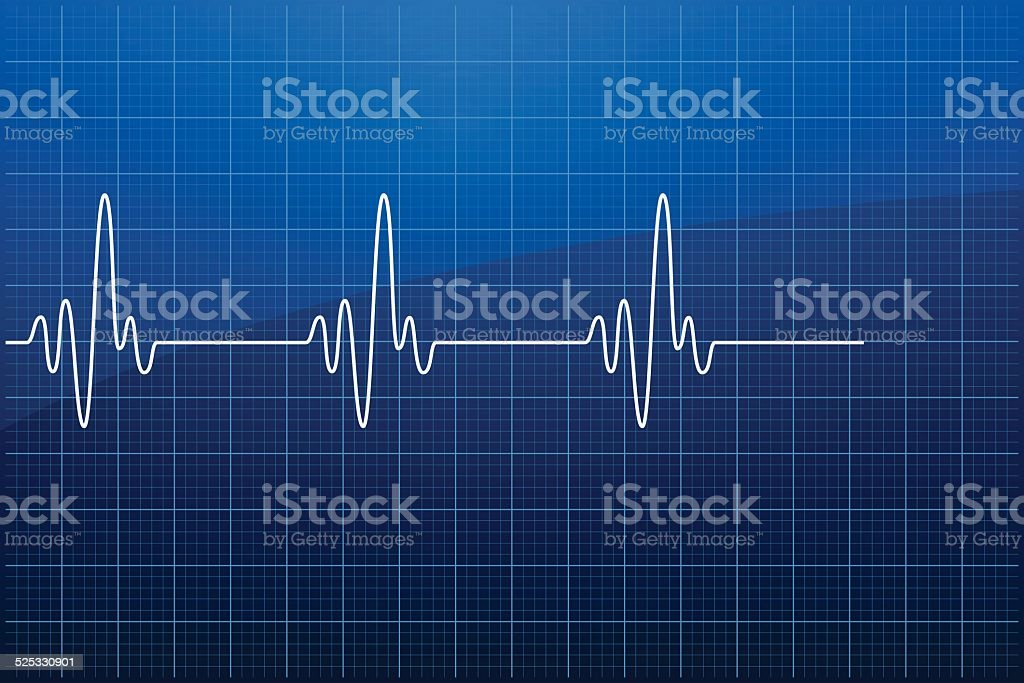 Electrocardiogram EKG - VECTOR vector art illustration