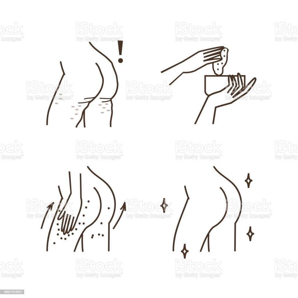 Сellulite vector art illustration