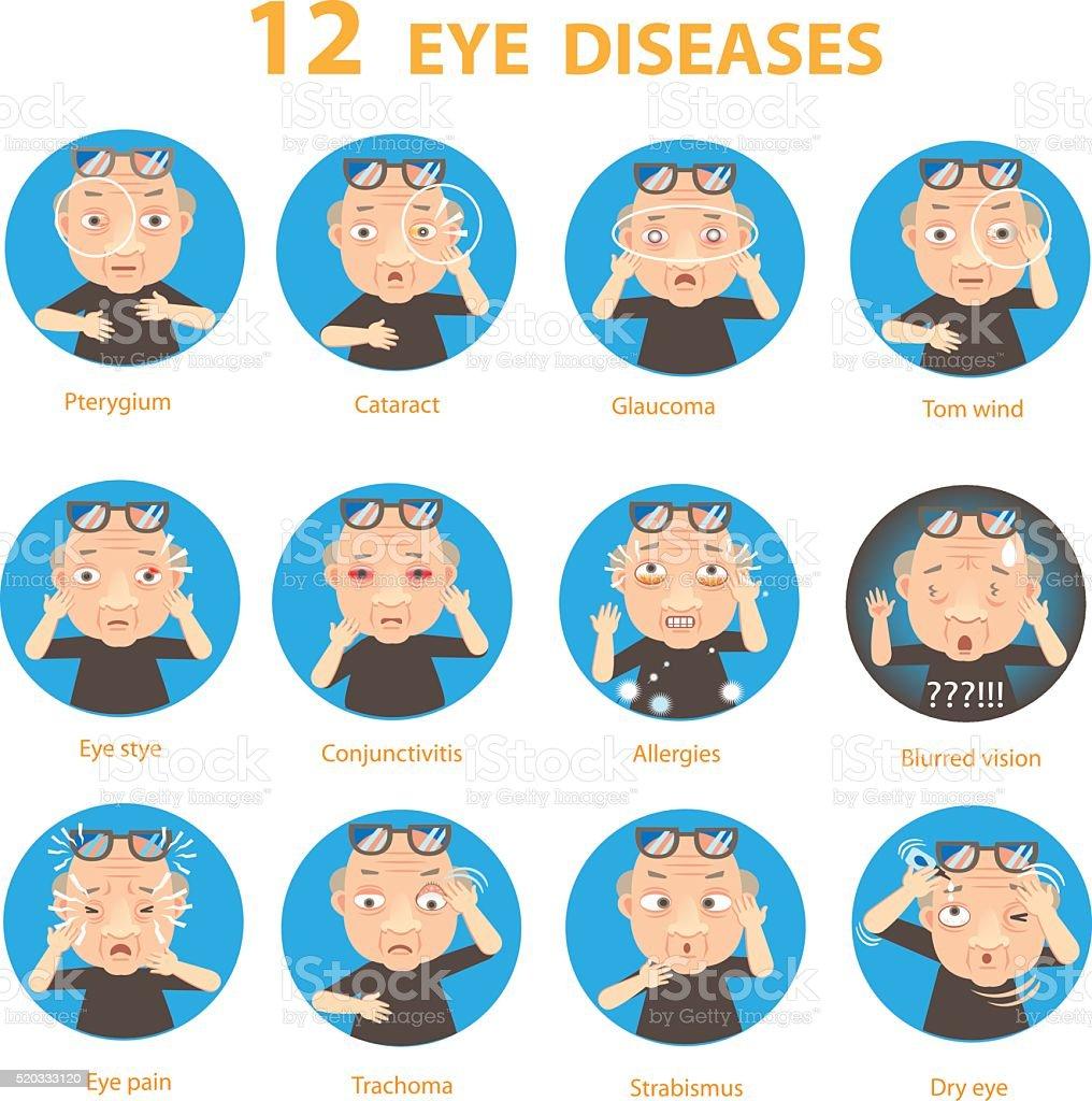 Occhio malattie illustrazione royalty-free